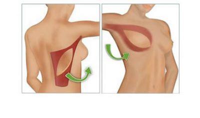 desenho de reconstrução mamária com grande dorsal