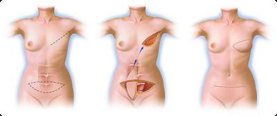 Reconstrução mamária com retalho de abdômen
