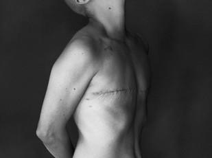 Fotos de mulheres com Cicatriz da Mastectomia vira Obra de Arte-Scar Project