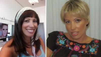 cancer-mama-carcinoma-quimioterapia-careca-semcabelo-peruca-dascoisasquetenhoaprendido5