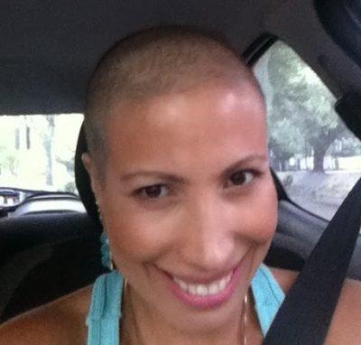 cancer-quimioterapia-efeito-colateral-careca-semcabelo-dascoisasquetenhoaprendido-3