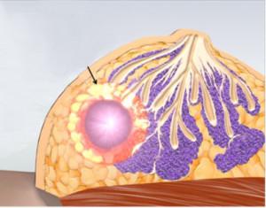radioterapia e seus efeitos colaterais