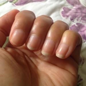 como-cuidar-das-unhas-durante-a-quimioterapia