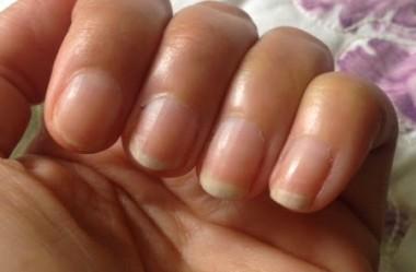 Como cuidar das suas unhas durante a quimioterapia e radioterapia