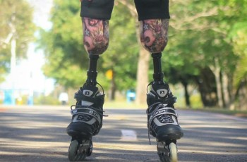 O que Adriele Silva, atleta com amputação bilateral, me ensinou sobre superação.