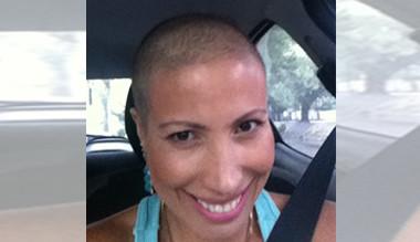 Seus cabelos voltaram a nascer após a quimioterapia? Como não enlouquecer neste período…