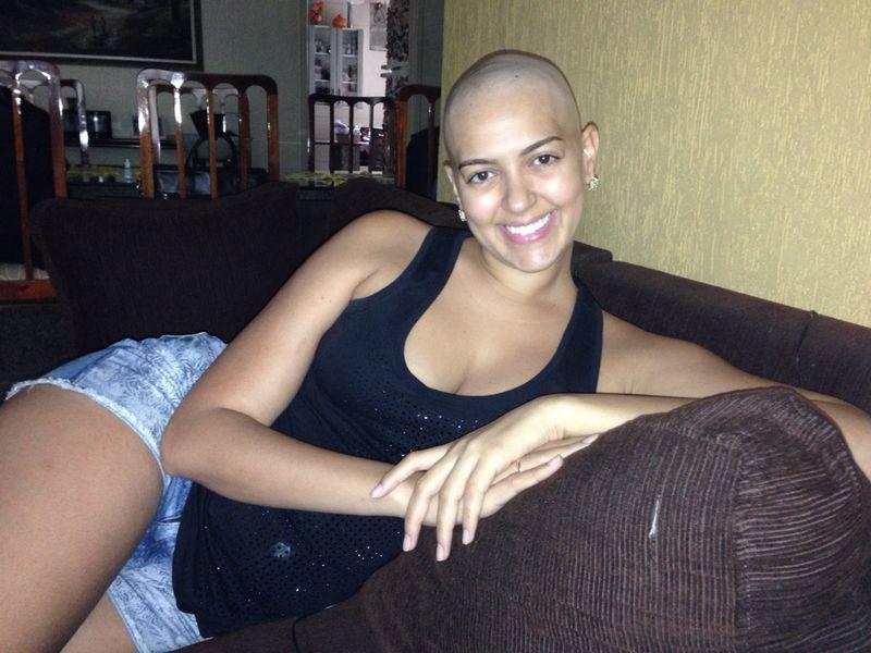 cancer-mama-nodulo-maligno-carcinoma-ductal-infiltrante-cancro-quimiterapia-mastectomia-radioterapia-efeito colateral-careca-auto estima-lenco-peruca-carinne (11)