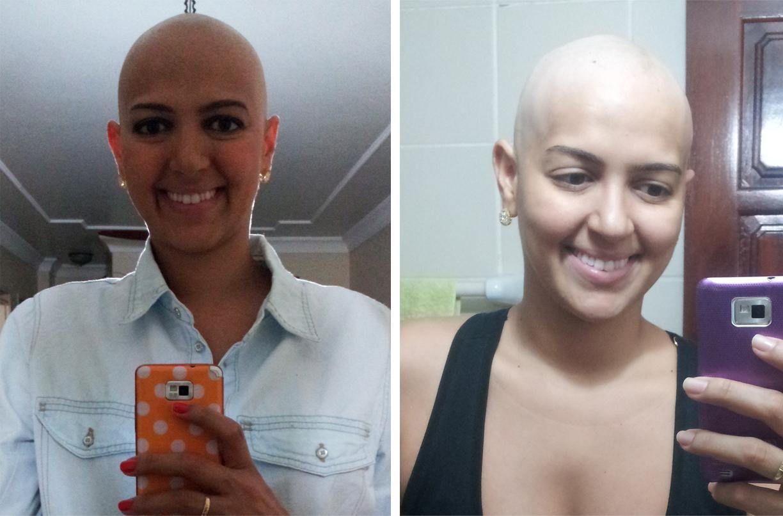 cancer-mama-nodulo-maligno-carcinoma-ductal-infiltrante-cancro-quimiterapia-mastectomia-radioterapia-efeito colateral-careca-auto estima-lenco-peruca-carinne (12)
