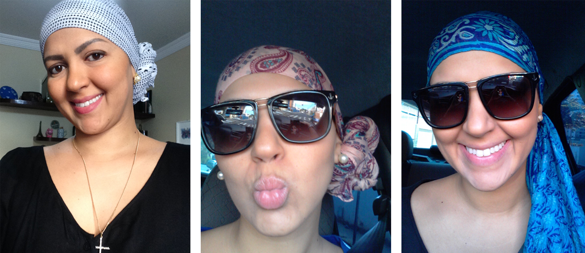 cancer-mama-nodulo-maligno-carcinoma-ductal-infiltrante-cancro-quimiterapia-mastectomia-radioterapia-efeito colateral-careca-auto estima-lenco-peruca-carinne-2