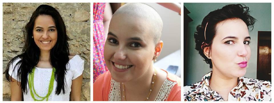 linfoma de Hodgkin-câncer osseo-quimioterapia-mulher-careca-sem cabelo- (5)
