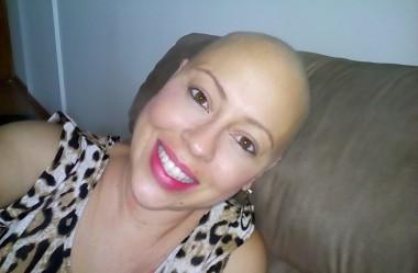 """""""Espero que outras pessoas também vejam o câncer como uma forma de melhorar a vida """" Natalí de Paula"""