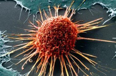 Estadiamento no Câncer de Mama- Você sabe o que significa?
