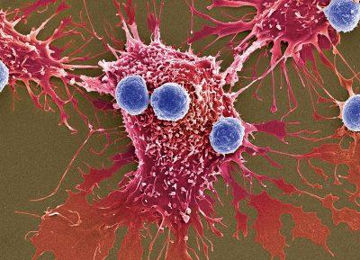 Novos tratamentos aumentam as chances de Cura do Câncer