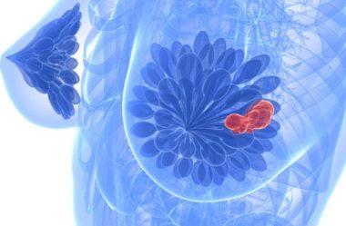 Conheça todos os tipos de câncer de mama e os tratamentos específicos para cada um