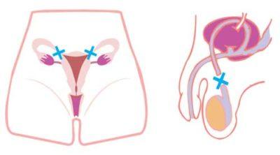método contraceptivo e o câncer