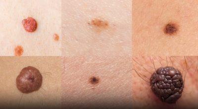 câncer de pele e vitamina D