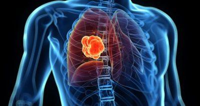 Novidades no tratamento do câncer