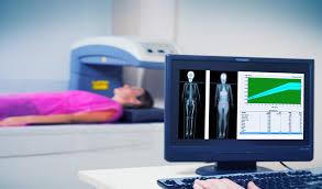 checkup pós tratamento - desintometria óssea