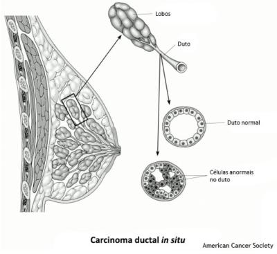 Tipos de Câncer de mama - carcinoma ductal n situ
