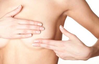Minha Mastectomia Radical com reconstrução da mama