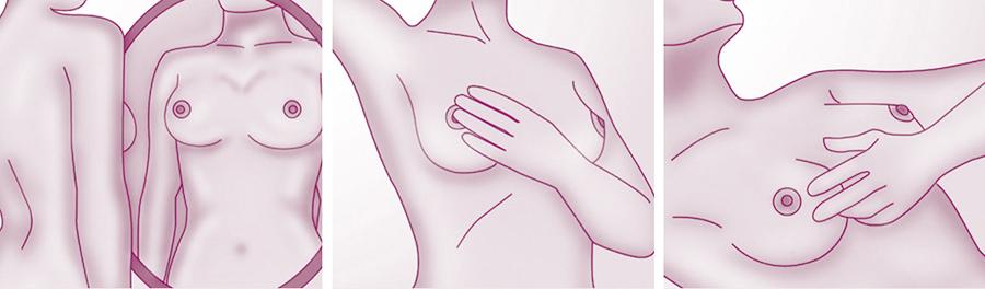 auto-exame-prevencao- diagnostico-precoce-cancer -mama -dascoisasquetenhoaprendido